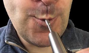 lippen-expander